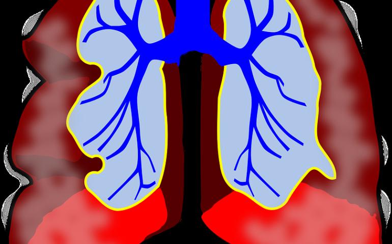 ako sa lieci astma, astmaticky zachvat